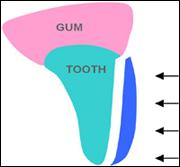 Dental Veneers North Creek Dental Care - Everett